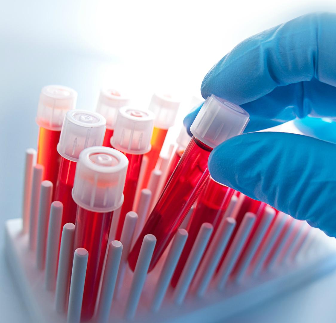 EMA (Endomysial Antikor) Testi