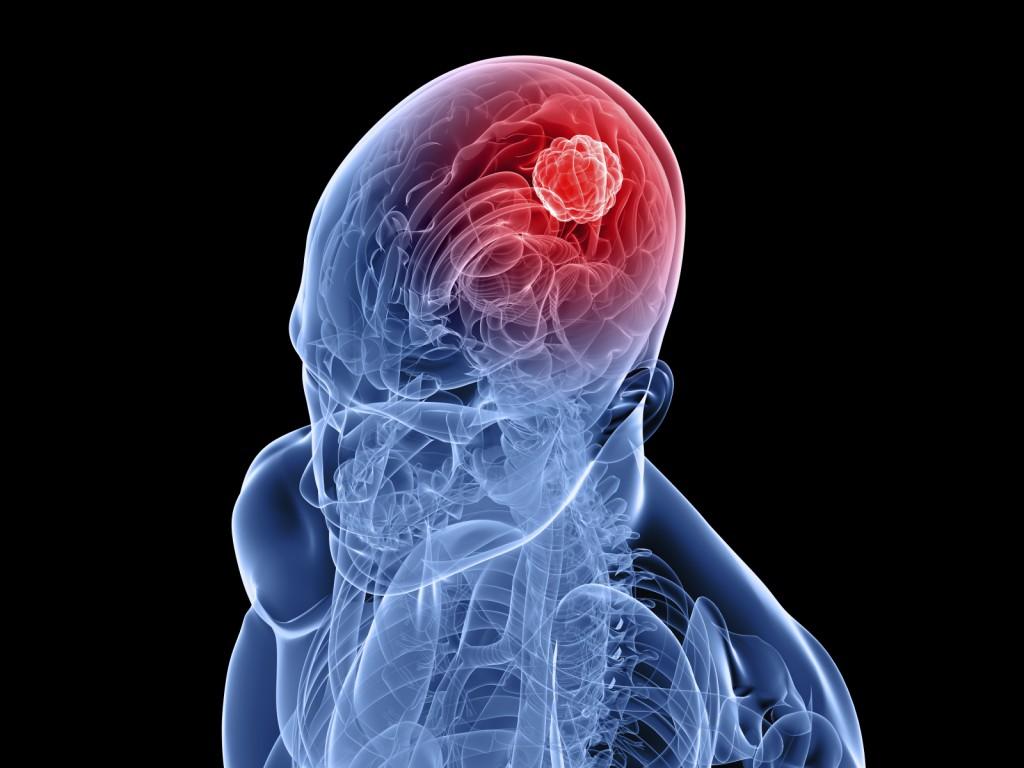 GBM (Glioblastoma Multiforme ) Neden Erkeklerde Sık Görülür?