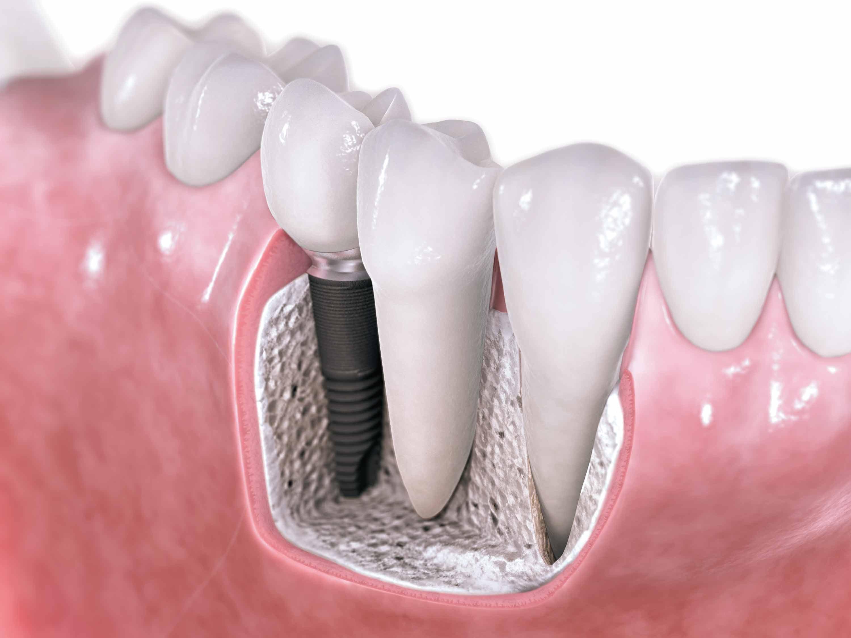 İmplant Dişler Dayanıklı mıdır?