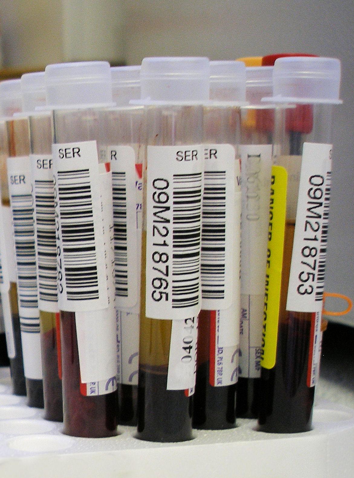 Monospot Test (Heterofil Antikor) Nedir?