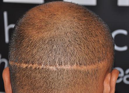 Perkutan Saç Ekim Tekniğinde Yan Etki Var Mıdır?