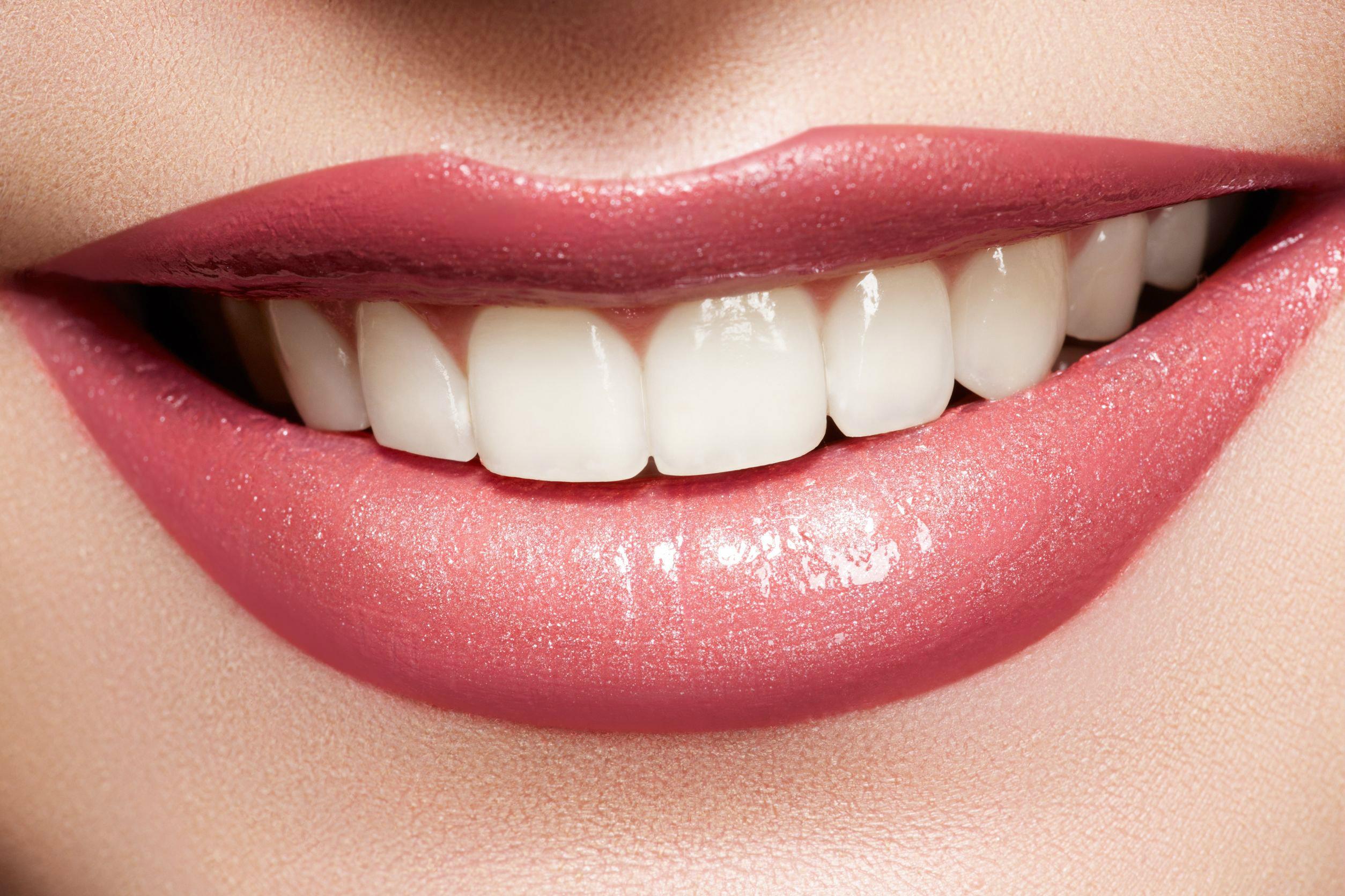 Dişlerin Zarar Görmesine Neler Sebep Olur?