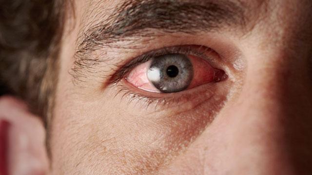 Gözbebeği İltihabı Nedir?