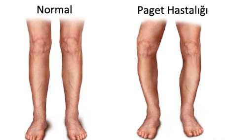 Paget Hastalığı ve Belirtileri Nelerdir?