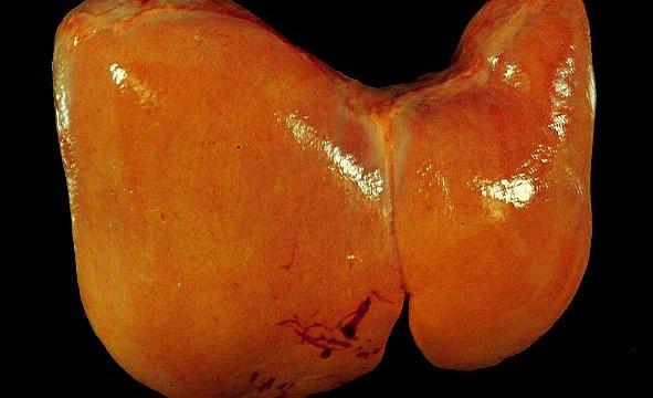 Karaciğer Yağlanması Tanısında Hangi Tahliller Yapılır?