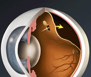 Retina Dekolmanı Nedir? Retina Dekolmanı Belirtileri Nelerdir?