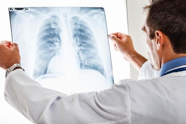 Akciğer Apsesi, Belirtileri ve Tedavisi Nelerdir?