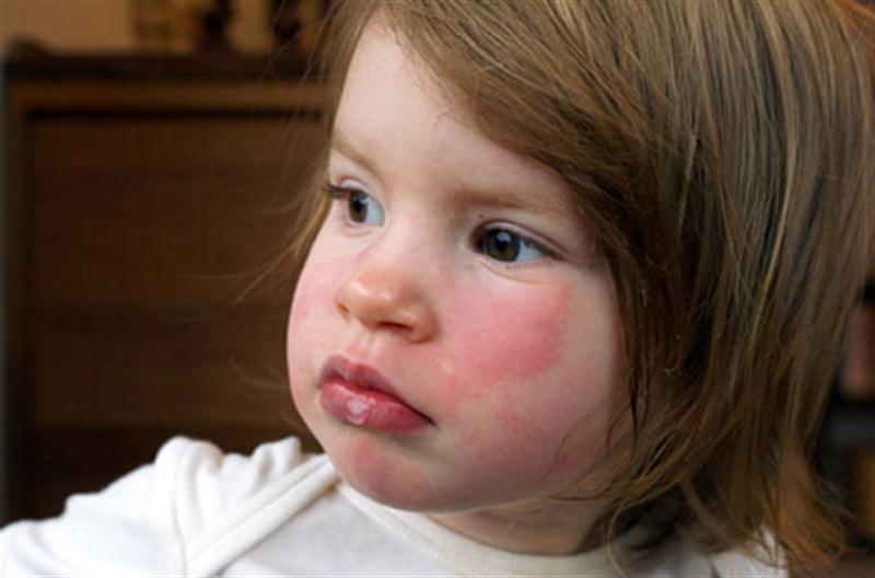 Eritema Enfeksiyozum: Beşinci Hastalık Nedir?