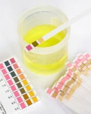 İdrar Tahlilinde pH Hangi Hastalıklarda Önemlidir?
