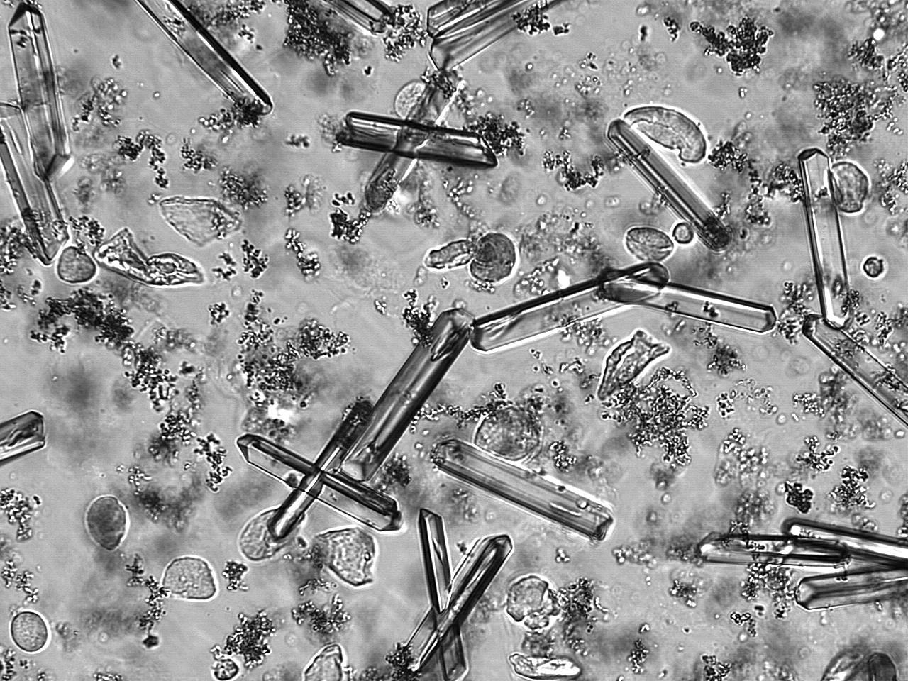 İdrar tahlilinde kristal görünürse ne anlama gelir?