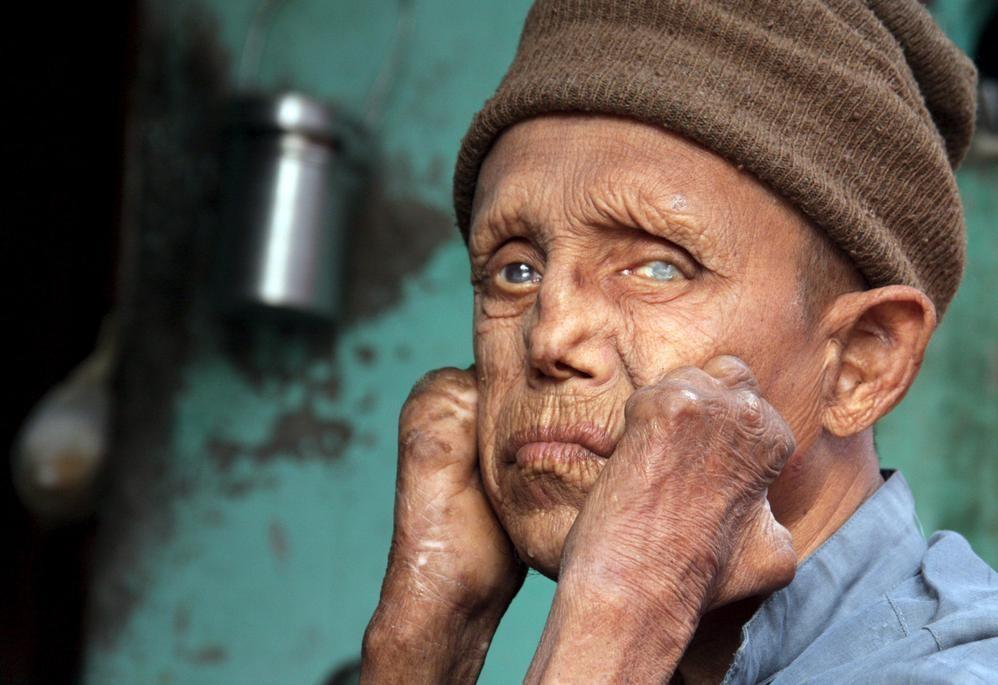 Cüzzam (Lepra) Hastalığı ve Belirtileri