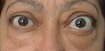 Tiroid Bezi Hastalıklarında Gözde Ne Tür Sağlık Sorunları Olur?