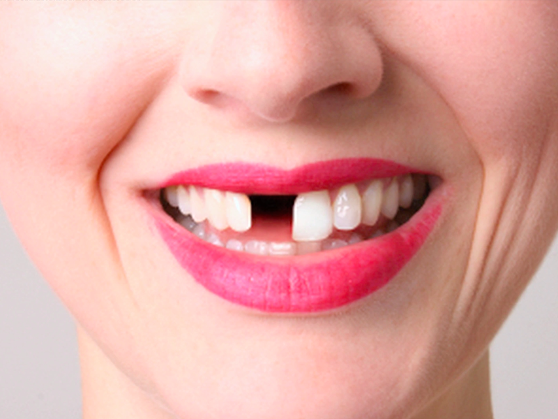 Eksik Dişler Çene Sağlığını Bozuyor.