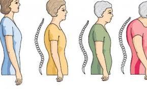 Kemik Erimesi (Osteoporoz) Nedir?