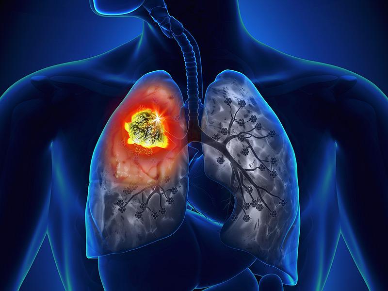 Akciğer Kanseri ve Akciğer Kanserinde Cerrahi Tedavi :Akciğere Bıçak Değer mi?