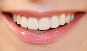 Bakımsız Dişler Bir Çok Hastalığın Habercisi