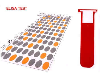 ELİSA testi demek HIV testi değildir.Tahlil.com uyarıyor!