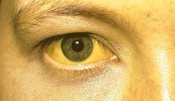 Gilbert Sendromu (Gilbert Hastalığı) ve Bilirübin Yüksekliği