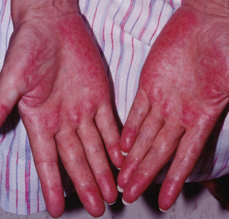 Graft Versus Host Hastalığı Nedir?