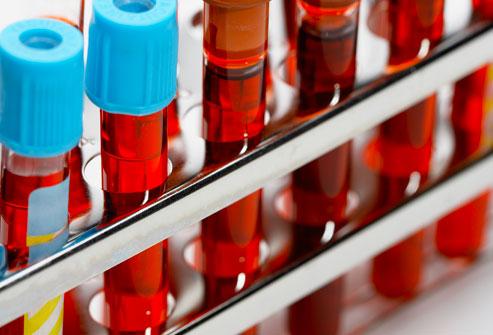 Hematoloji Testleri Nelerdir? Hematoloji Testlerinin Yorumu