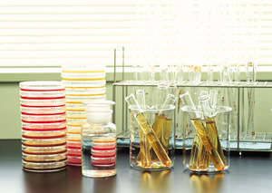 İdrar Proteini Testi Nedir? Hangi Durumlarda İstenir?