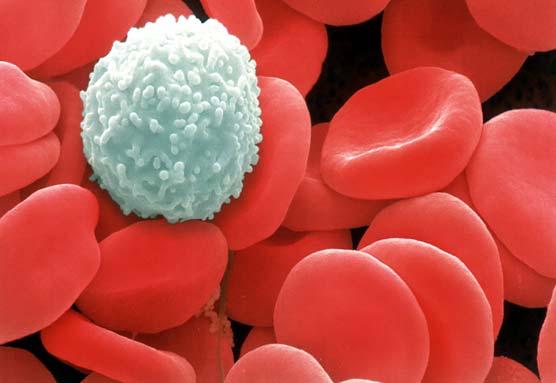 Kan Sayımı Nedir? Kan Sayımı Testi Nasıl Yorumlanır?