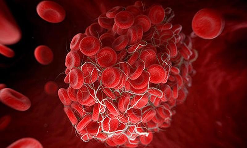 Kan Uyuşmazlığı Nedir? Kan Uyuşmazlığı Testi Nedir?
