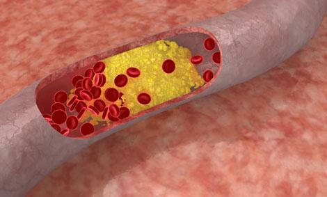 Kolesterol Nedir? Kolesterol Yüksekliği ve Kolesterol Testi