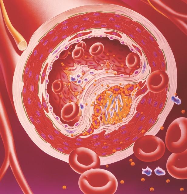 Kolesterol Normal Değeri Nedir?