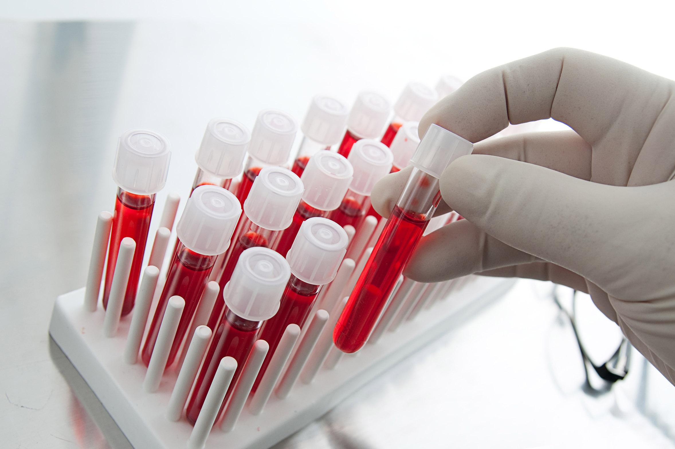 PSA Testi ile Prostat Kanserinde Erken Teşhis