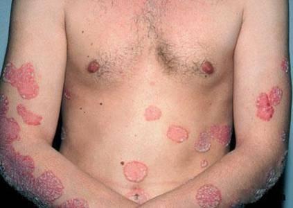 Sedef Hastalığı (Psöriasis)
