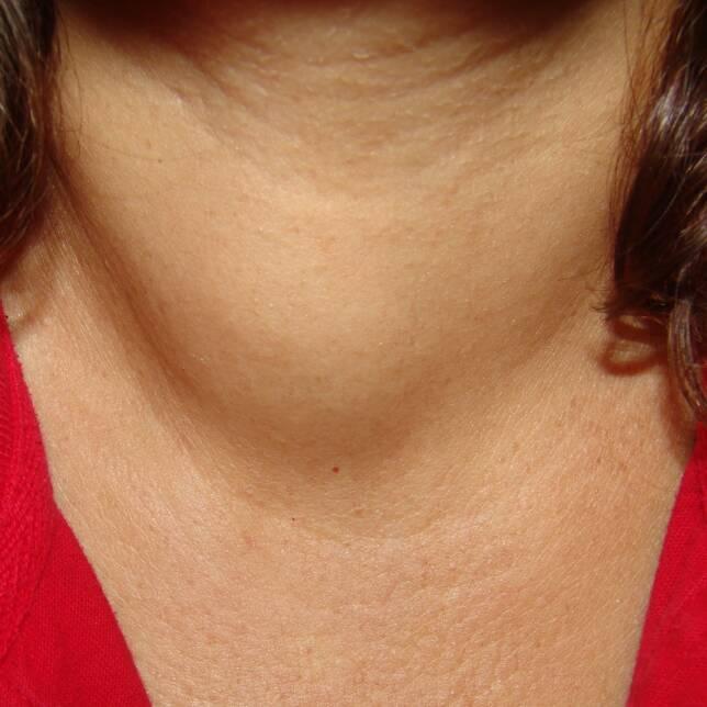 Tiroid Nodülü Nedir?