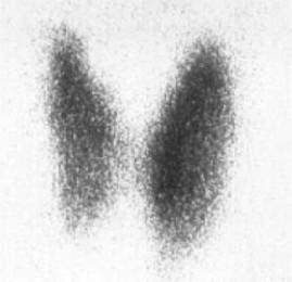 Tiroid Sintigrafisi (Tiroid taraması) Tahlili Nedir?