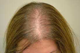 Tiroid Hastalarında Saç Dökülmesi Daha Çok Görülür