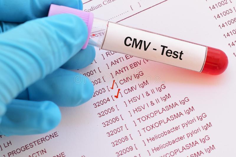 CMV IgG Avidite Nedir? Yüksekliği ve Düşüklüğü Nasıl Yorumlanır?