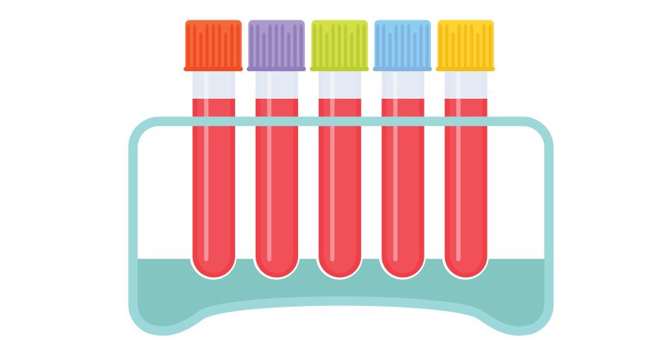 Progesteron Luteal Faz ve Normal Değerleri Nedir?