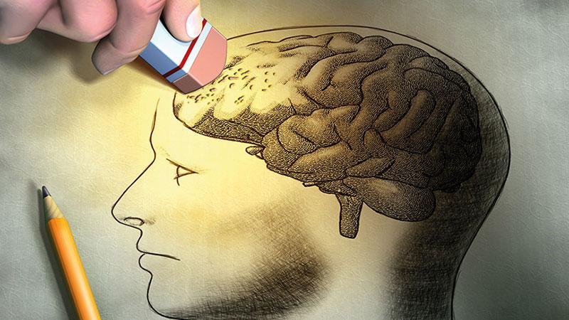 Alzheimer Engellenebilir mi?