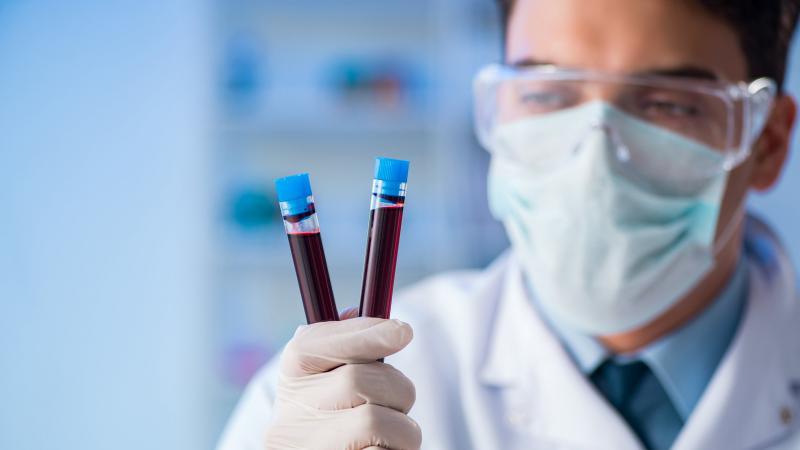 Koagülasyon Nedir? Koagülasyon Testleri Nelerdir?