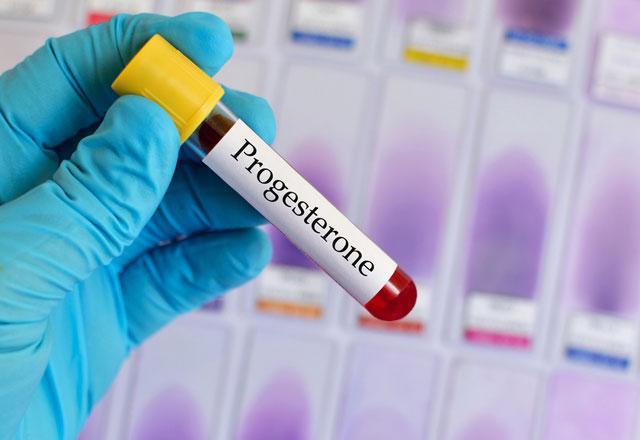 Progesteron Testi Nedir ve Ne Zaman Yapılır? Progesteron Yüksekliği ve Düşüklüğü