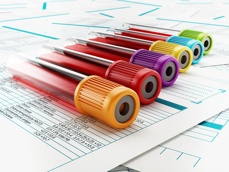 Kan Testi Yaptıracaklara Öneriler: Kan Testi Nasıl Yapılır?