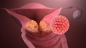 Kişi Kendine HPV Muayenesi Yapabilir mi?