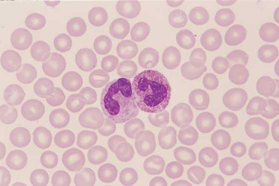 Nötrofilleri Anlama: Fonksiyon, Sayım, ve Daha Fazlası