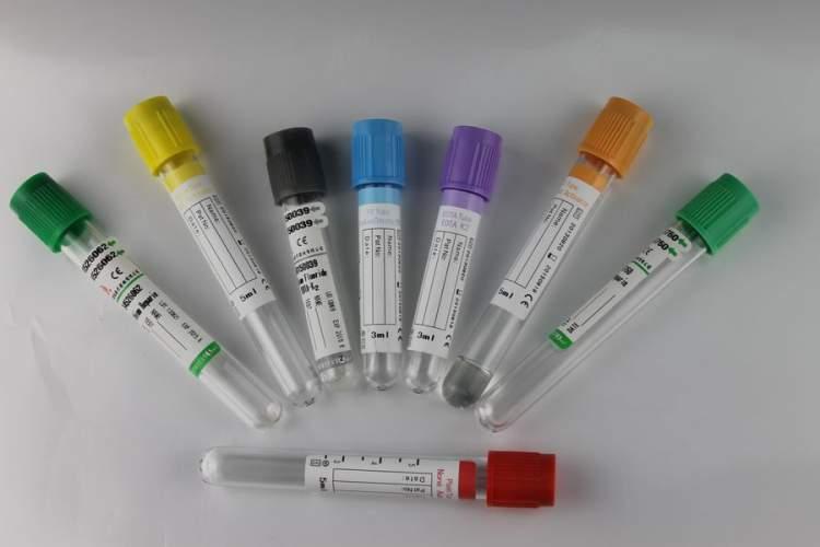 Laboratuvar Tahlilleri İçin Kan Verirken Nelere Dikkat Edelim?