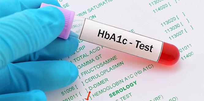 Hemoglobin A1c Testi Nedir? Normal Değerleri Nelerdir?