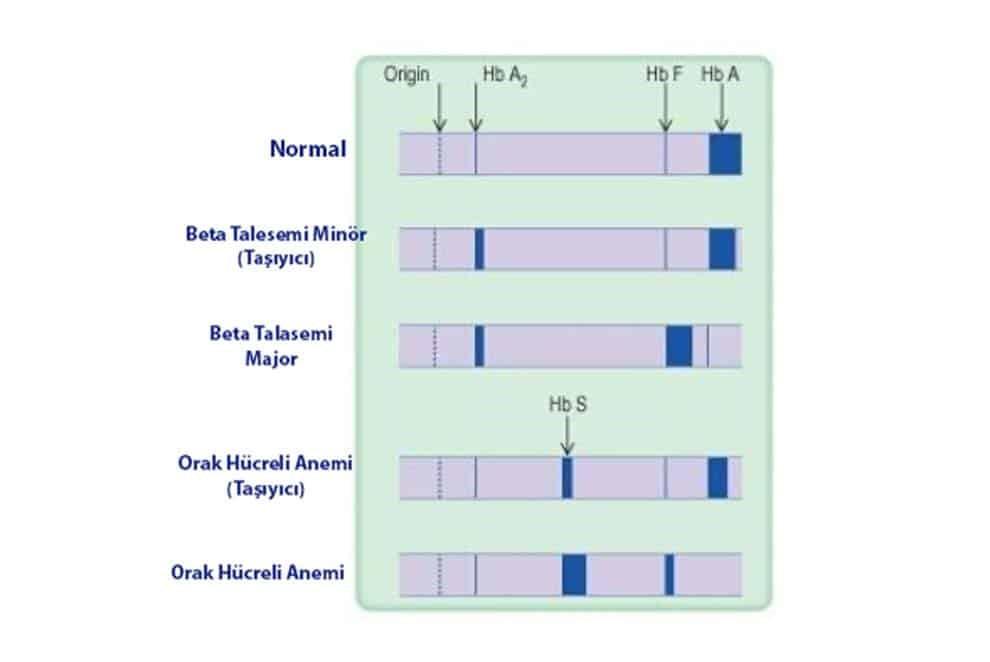 Hemoglobin Elektroforezi Nedir?