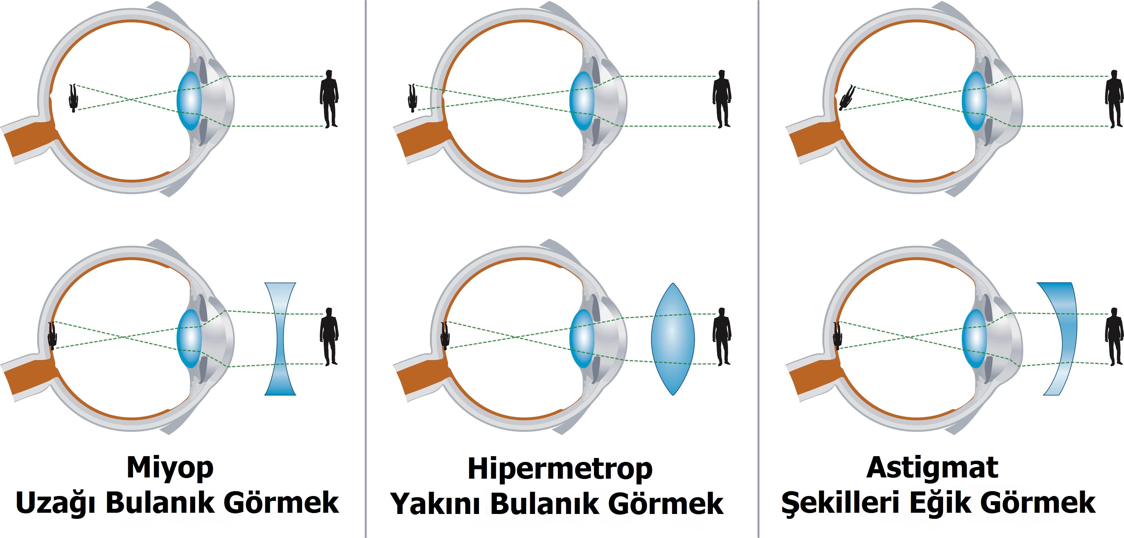 Astigmatizm Hipermetrop ve Miyopi Belirtileri ve Nedenleri