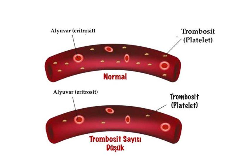 PLT (Trombosit) Düşüklüğü ve PLT Yüksekliği Nedir?